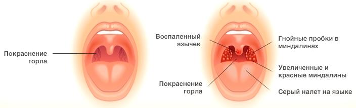 Как лечить горло ребенку до года в